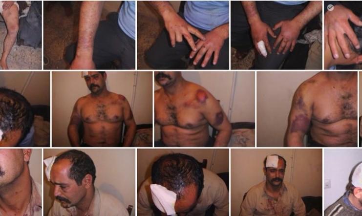 به روایت تصویر: خشونت و خون ریزی در جریان سرکوب تظاهرات دراویش گنابادی در تهران