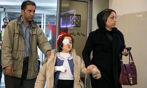 ۱۶۳ نفر از ناحیه چشم آسیب دیدند! ۲ کشته، ۱۰۷۱ مصدوم و ۱۰ نقص عضو : آمار مصدومان ۴ شنبه سوری امسال در ایران