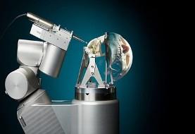 محققان دانشگاه آیندهوون در هلند رباتی ساختند که جمجمه انسان را با دقت بالا و بدون آسیب به اعصاب و رگ ها سوراخ میکند