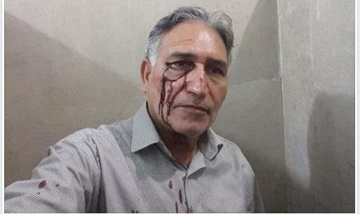 وضعیت وخیم جسمی محمد نوریزاد در زندان مشهد: از امضا کنندگان نامه درخواست استعفای آیت الله خامنه ای