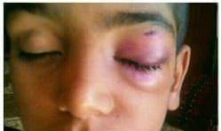 ضربه به چشم دانش آموز بر اثر مشت معلم هنرستان کاردانشی در تهران! جزئیات درگیری یک دانشآموز و مدرس