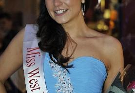 بهبودی صورت مُدل ایرانی-بریتانیایی و شرکت در مسابقه دختر شایسته انگلستان