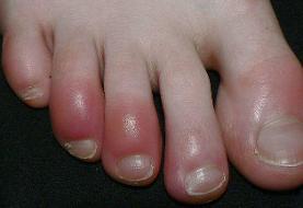 پنج عارضه پوستی مرتبط با کووید-۱۹ شناسایی شد
