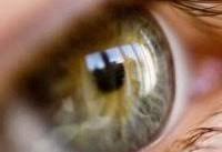 افراد بالای ۴۰سال مراقب این بیماری خطرناک چشم باشند