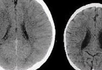 These two brains both belong to three-year-olds, so why is one so much bigger?