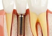 افزایش طول عمر ایمپلنت&#۸۲۰۴;های استخوانی و دندانی
