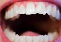 لزوم توجه به گسترش کیفی رشته جراحی دهان، فک و صورت