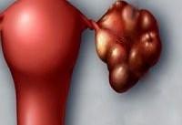 ضرورت پیشگیری و درمان سندرم تخمدان پلی کیستیک از دوران بلوغ