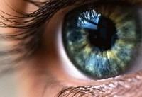 ۵ توصیه برای سلامت چشمها