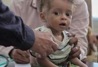 سازمان نجات کودکان درخصوص افزایش تلفات دیفتری در یمن هشدار داد