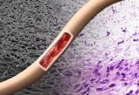 تلاش محققان برای اجرای فاز کلینیکی رگهای مصنوعی در مراکز درمانی/بومیسازی دو دستگاه ساخت تفلن