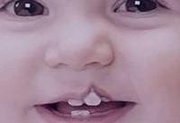 بررسی جدیدترین روشهای جراحی شکاف کام و دهان