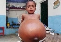 بیماری نادر پسر ۹ ساله (عکس)