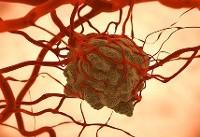 مراکز شیمی درمانی استاندارد شدند/راهنمای درمانی ۱۲ داروی پرهزینه سرطان منتشر شد