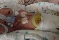 نوزادی که ۲۲ دقیقه قلبش ایستاده بود به یکسالگی رسید