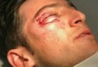 مصدومیت شدید سردار آزمون از ناحیه چشم (عکس)