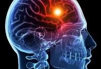 هرسال ۱۰۰ هزار ایرانی سکته مغزی میکنند