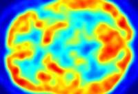 این فناوری ۶ سال زودتر از پزشکان آلزایمر را تشخیص میدهد!