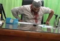 حمله به پزشک در حال خدمت + عکس