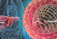 شیوع مجدد هپاتیت آ در تنسی امریکا/ مرگ و میر بیشتر در راه است