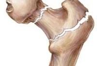 یک توصیه خوراکی برای پیشگیری از پوکی استخوان