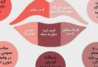 آیا میدانید؛ رنگ لب ها از سلامتی شما خبر می دهد؟! +اینفوگرافی