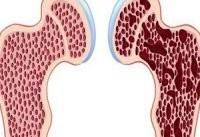 باکتری های پروبیوتیک از پوکی استخوان پیشگیری می کنند