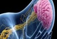 یک قدم برای جلوگیری از عارضه دار شدن سکته مغزی