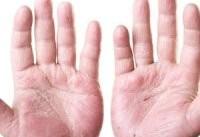 دلایل احتمالی ورم انگشتان دست