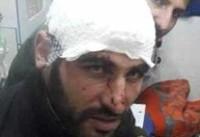 حمله به دو محیطبان استان البرز با سلاح سرد