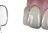 روکش جدید برای دندان ها ابداع شد