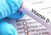 نکته بهداشتی: کمبود ویتامین D