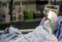 درمان سوختگی در ایران سنتی است/ ۲۸ هزار دلار هزینه یک سوخته