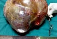 تومور ۱۱ کیلویی در شکم زن هندی (عکس)
