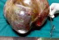 تومور ۱۱ کیلویی در شکم زن هندی+عکس