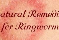 روشهای خانگیِ درمان قارچ پوستی