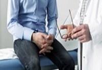 درمان جدید سرطان با تقویت و تحریک سیستم ایمنی