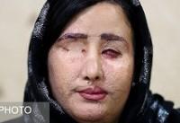 معاینه چشم جورکش توسط وزیر بهداشت در اصفهان