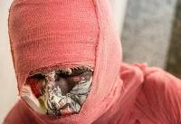 اولین خسارت چهارشنبه سوری امسال