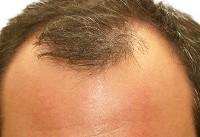 علت ریزش مو از ابتدای سنین جوانی/ موهای کاشته شده هم میریزند
