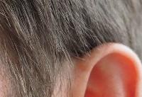مصرف خودسرانه دارو به سلامت شنوایی آسیب میزند