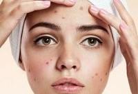 توصیه های ویژه برای حفظ سلامت پوست در نوجوانی