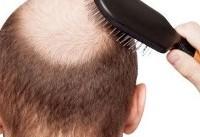 آیا شامپو در ریزش مو تاثیر دارد؟