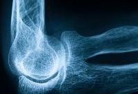 ۶ نشانه خاموش پوکی استخوان