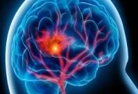 سونوگرافی یک روش مهم پیشگیری از سکته مغزی ثانویه