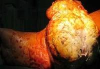 خروج تومور ۲ کیلویی از پای یک بیمار +عکس