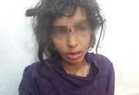 بازتاب شکنجه کودکان ماهشهری توسط نامادری و پدر +عکس،ویدئو
