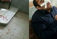 دستور وزیر آموزش و پرورش در پی ضرب و شتم یک معلم در خوزستان