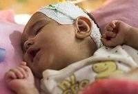 یک آزمایش مهم برای پیش از تولد تحت پوشش بیمه + جزئیات