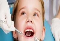 تغذیه نامناسب دوران شیرخوارگی علت اصلی پوسیدگی دندان&#۸۲۰۴;های کودکان